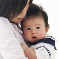大滝歯科 母子感染 画像