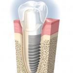 知っておくと安心なインプラントについての知識 岡谷市大滝歯科医院